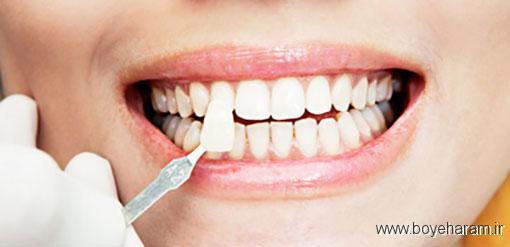 عوارضی که برای درمان لمنیت هست,طول عمر دندان لمینت شده,مزایای انجام لمینت