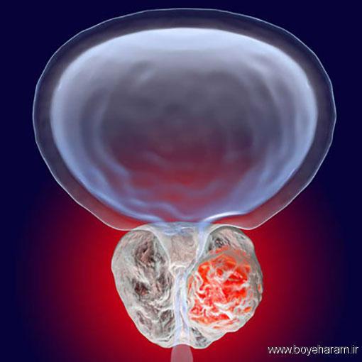 چه غذاهایی برای پیشگیری از ابتلا به پروستات مفید است؟,چه بخوریم که به سرطان پروستات مبتلا نشویم؟,دلایل ابتلا به سرطان