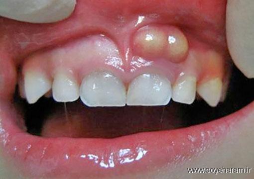 آموزش های پزشکی,دندان پزشکی,آبسه لثه چیست؟,آبسه دندان