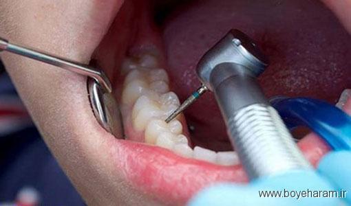 آیا عصب کشی دندان در بارداری ضرر دارد؟,چگونه از عصب کشی جلوگیری کنیم؟