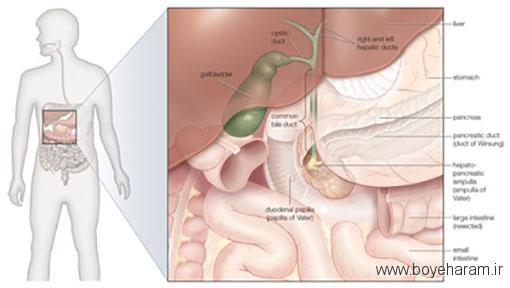 از جمله عواملی که باعث بروز این مشکلات در کیسه صفرا می شوند,التهاب کیسه صفرا,شایع ترین علائم و نشانه های بیماری های کیسه صفرا,