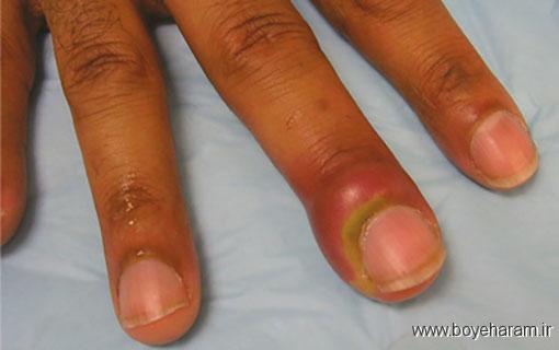 علائم عقربک ناخن,تشخیص عقربک ناخن,افراد مستعد عقربک ناخن,عوامل افزايش دهنده خطر عقربک