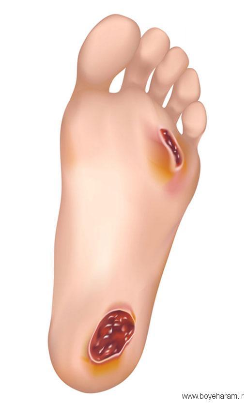 پماد برای زخم پای دیابتی, کرم زخم پای دیابتی