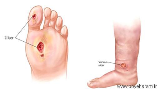 درمان زخم پای دیابتی با روغن زیتون,درمان زخم پای دیابتی با سرکه سیب,درمان زخم پای دیابتی با روغن نارگیل