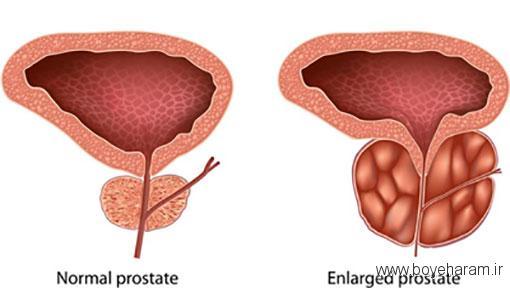 قرص پروستادین,درمان های خانگی بزرگی پروستات,درمان بزرگی پروستات با گیاهان دارویی