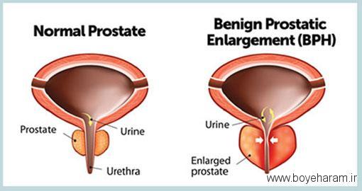 فواید شیرین بیان برای درمان پروستات,پیشگیری از بزرگ شدن پروستات با سرکه سیب