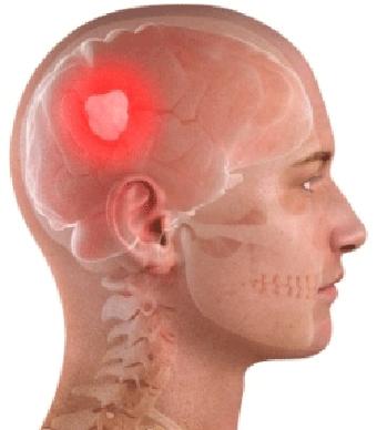 با تومور مغزی چه باید کرد