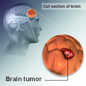 پیشگیری از تومور مغزی,عوامل تسکین دهنده تومور مغزی,دلایل به وجود آمدن تومور مغزی