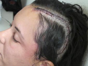 عوامل به وجود آورنده تومور مغزی,دلایل به وجود آمدن تومور مغزی,آیا عمل جراحی تومور مغزی آسان است؟,