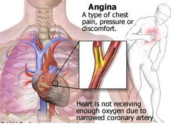 دلایل درد قفسه سینه چیست؟,علائم درد قفسه سینه چیست؟,درمان درد قفسه سینه,درمان سوزش قفسه سینه