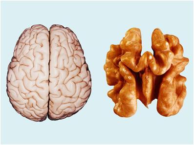 نقش تغذیه در درمان آلزایمر,زوال عقل,علائم آلزایمر,نقش سیب در درمان آلزایمر