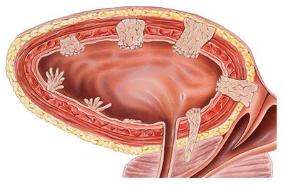 آموزش پیشگیری از تومور مثانه,پیشگیری از تومور مثانه,شیمی درمانی