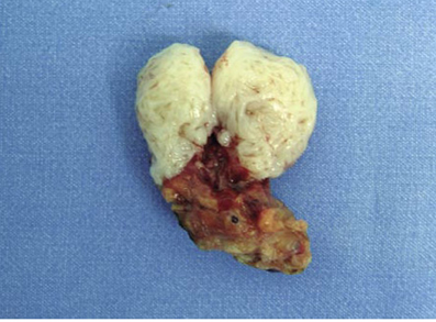 همه چیز در مورد تومور مثانه و روش درمان