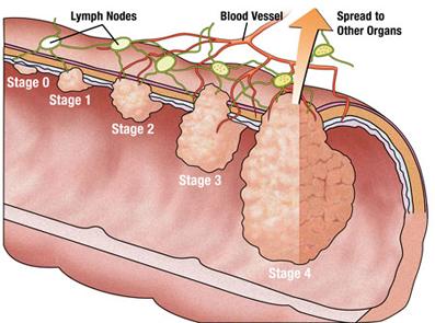 دلایل اصلی سرطان کورکتال و راه های درمان