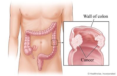 راه های تشخیص سرطان روده,بیماری سرطان روده,راه های درمان سرطان روده,سرطان روده چیست؟,عوامل اصلی سرطان روده