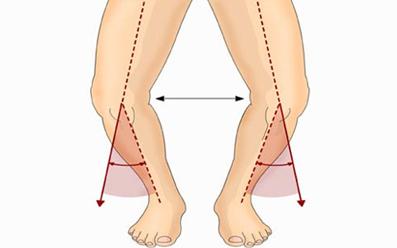 اسم بیماری پرانتزی شدن پاها,پرانتزی شدن پای نوزاد,پیشگیری از پرانتزی شدن پای نوزاد