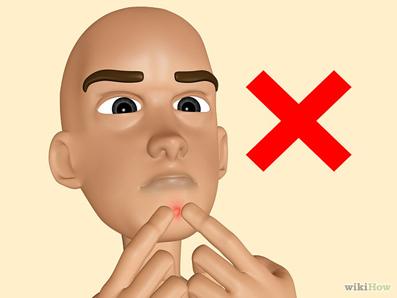 کاهش دادن جوش صورت,درمان قطعی جوش صورت,ازبین بردن آکنه,آکنه صورت