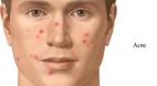 آیا روشی قطعی برای ازبین بردن جوش صورت وجود دارد؟