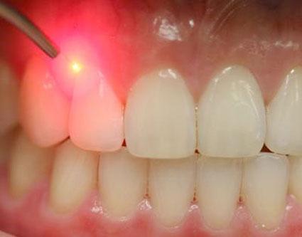 عفونت های دهانی,کاهش عفونت های دهانی,درمان انواع بیماری ها