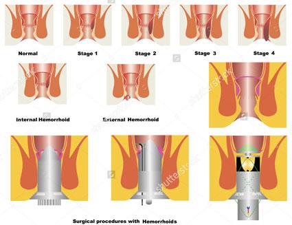 عمل جراحی بواسیر کون,بواسیر داخلی,علایم بواسیر,عمل بواسیر با لیزر,علت بواسیرِ