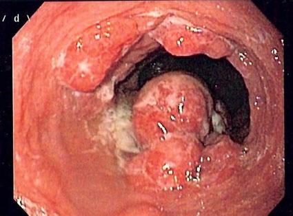 درمان سرطان مری با دارو,درمان سرطان مری با قرص