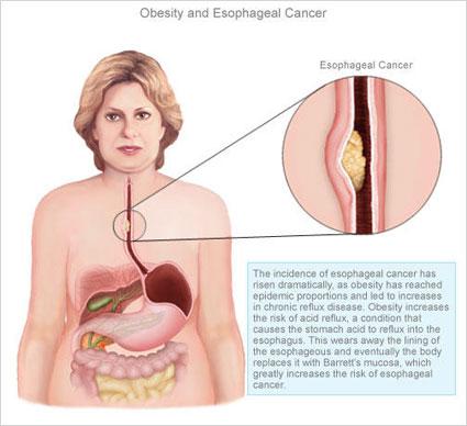 همه چیز در مورد سرطان مری,داروی درمان کننده سرطان مری