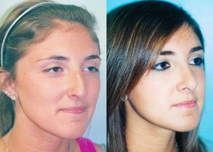 جراحی زیبایی بینی,زیبایی بینی,عوارض جراحی بینی,عمل کردن بینی
